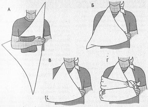 Как сделать косынку при переломе