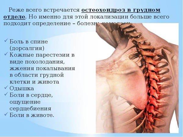Иррадиация боли в грудной отдел позвоночника