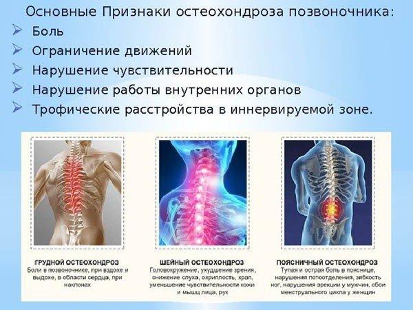 Чем лечить шейно грудной остеохондроз в домашних условиях 378