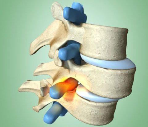 Лечение нестабильности диска в шейном отделе позвоночника
