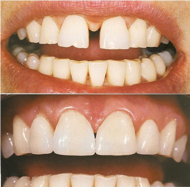 Убрать щель между зубами в домашних условиях 741