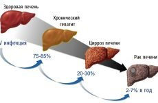 Скільки живуть з гепатитом с: тривалість життя без лікування