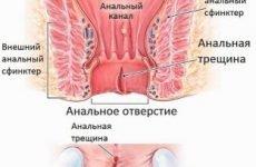 Кров при дефекації у дорослих жінок та чоловіків без болю: причини випорожнення з кров'ю