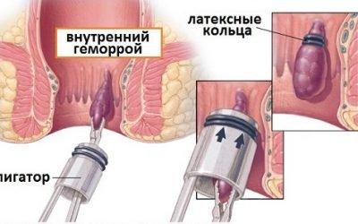 Процедура лігування вузлів при геморої та показання до неї