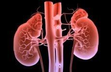 Быстропрогрессирующий гломерулонефрит | Причини і симптоми підгострого гломерулонефриту