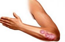 Червоний плоский лишай у людини: симптоми і методи лікування