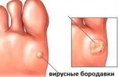 Як лікувати вірусні бородавки: причини і симптоми