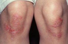 Перші симптоми псоріазу: причини виникнення, форми прояву, з чого починається хвороба у дітей