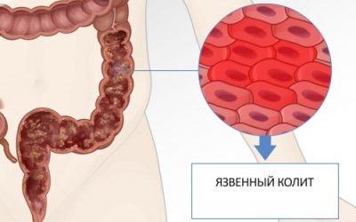 Симптоми і способи лікування неспецифічного виразкового коліту
