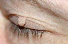 Папіломи на обличчі: причини появи, лікування