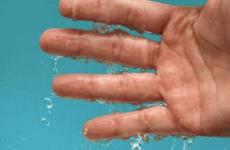 Сильно пітніють долоні рук: що робити, ефективні рецепти
