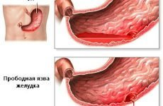 Біль у верхній частині живота по центру, причини чому болить вище пупка