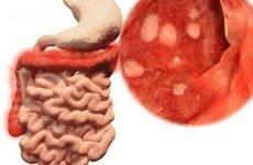 Дієта при неспецифічному виразковому коліті кишечника: меню на тиждень