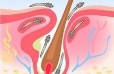 Аналіз на демодекс: зішкріб, скотч-проба, біопсія. Як здавати аналіз на демодекоз (підшкірного кліща)
