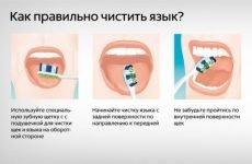 Як чистити мову, прибирати білий наліт?