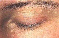 Лікування просянки на обличчі: причини і симптоми просяних зерен на обличчі, як лікувати просянку