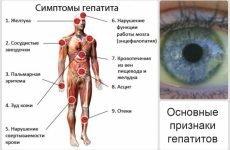 Болить печінка: причини, симптоми і лікування, що робити в домашніх умовах