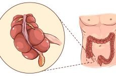 Причини розвитку флегмонозного апендициту і методи його усунення