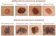 Як відрізнити родимку від папіломи: різниця, лікування, розпізнати кондилому