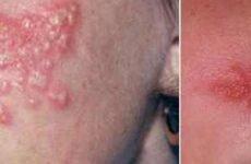 Причини появи герпесу на носі, симптоми і лікування застуди у дітей і дорослих