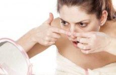 Прищі на носі у жінок і чоловіків: причини, лікування. Як позбутися від вугрів на носі (крилах носа)