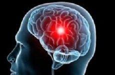 Інсульт у чоловіків: ознаки, симптоми, лікування