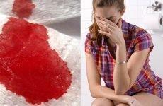 Причини появи крові під час запору та визначення захворювання