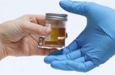 Аналіз сечі на лейкоцити — показники норми і підвищені leu