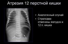 Атрезія прямої кишки, кишечника і 12-палої кишки у новонароджених