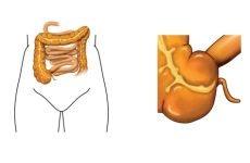 Причини формування і характерні симптоми гострого апендициту