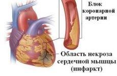 Біль у правому боці у чоловіка і жінки (тягучий, гостра, ниючий, тупий): що це може бути?