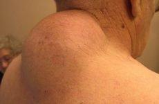 Жировик (ліпома) на тілі: фото, причини, як позбутися