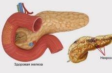 Панкреонекроз підшлункової залози: що це таке, симптоми, причини, лікування