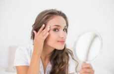 Найкращі засоби від прищів на обличчі. ТОП ефективних препаратів/лікарських для лікування вугрів, акне