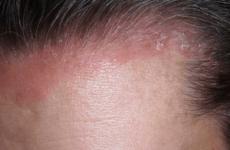 Як лікувати псоріаз волосистої частини голови: стадії, симптоми та причини