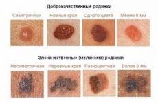 Родимка збільшилася і болить: чому болить родимка на обличчі та спині, чому свербить родимка на шиї, лікування