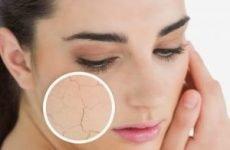 Прищі на сухій шкірі особи – причини появи, як і чим лікувати