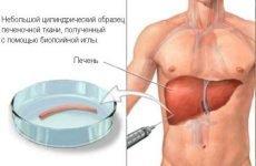 Біопсія печінки: як роблять, відгуки про пункційної процедурі
