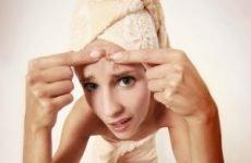 Кращі таблетки від прищів на обличчі. Гормональні та дріжджові таблетки від акне, вугрів і акне