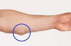 Жировик на руці під шкірою: як швидко позбутися, видалення