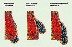 Причини розвитку гострого геморою та відмінні риси клініки