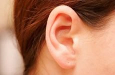 Прищі за вухами і на шиї: причини і лікування. Як позбутися прищів близько вух