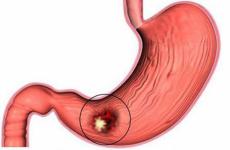 Як вилікувати бульба шлунка?