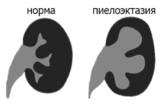 Піелоектазія нирок при вагітності: розширена балія правої або лівої нирки