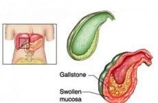 Некалькульозний (безкам'яного) холецистит: симптоми і лікування