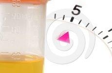 Добовий діурез у дітей: норма у однорічної дитини і новонародженого, алгоритм визначення добового діурезу