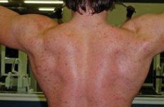 Акне на курсі стероїдів – як боротися і чим лікувати