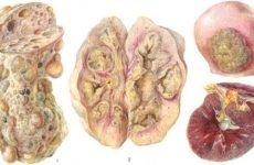 Туберкульоз нирок | Симптоми і лікування нирки у дорослих і дітей