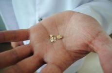 Камені в нирках у жінок і чоловіків | Симптоми й методи лікування