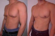 Гінекомастія у чоловіків: лікування без операції, видалення